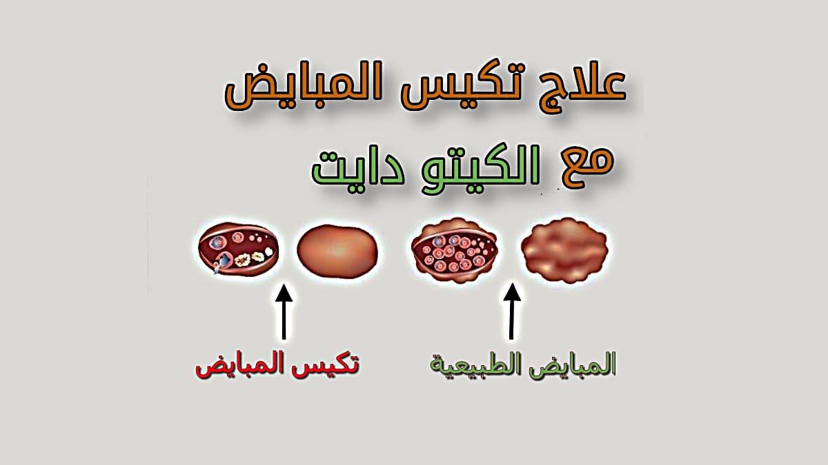 نظام كيتو دايت في علاج متلازمة تكيس المبايض طبيعيا بالغذاء وبدون أدوية نهائيا تغذية صح